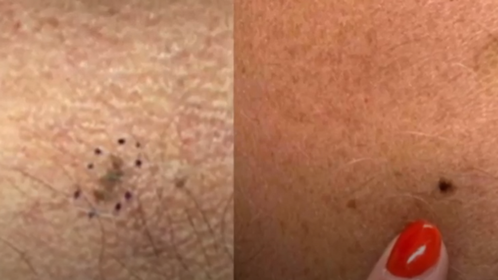 Sun Safety More Men Die Of Skin Cancer Here S How You Can Reverse The Trend Krcg
